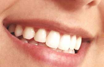 Reabilitar Odontologia